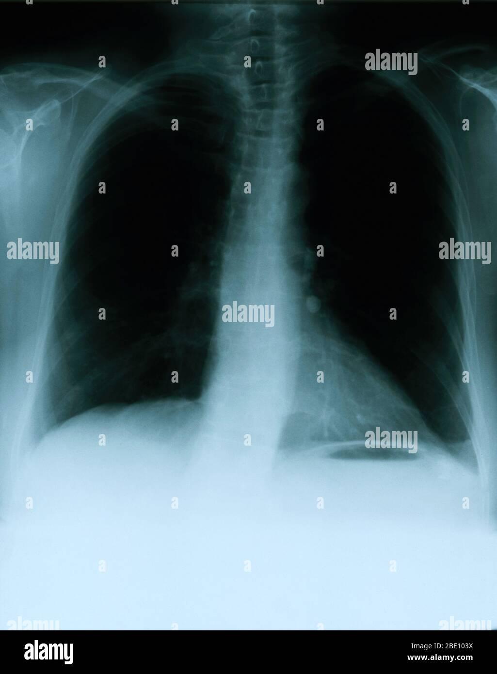 Röntgenaufnahme mit einer Frontansicht der Brust eines 54